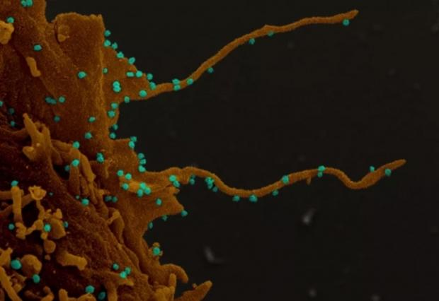 Coronavirus causes infected human cells to grow something really gross
